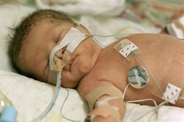 Neurological disorders in preterm children.