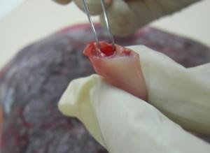 mobtencion de celulas madre de cordón umbilical se resulve improtante dificultad para su uso en medicina regenerativa