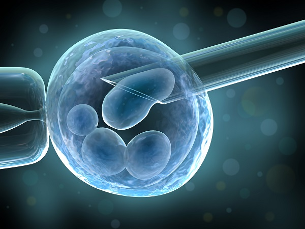 Assisted reproduction possible risk