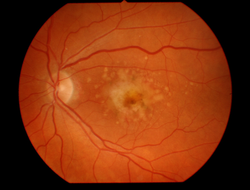 The technique has no problems, since the iPS cells were obtained from adult skin cells from the patient for cornea repaire.Other tecniques are being done