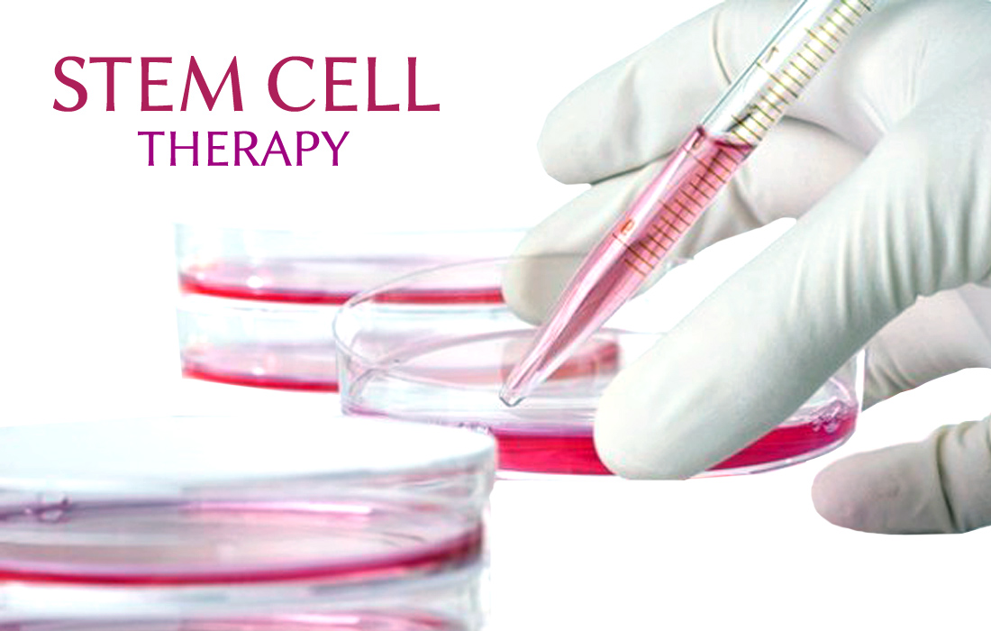 Stem cells clinical use as bone fractures, spinal cord injuries, retinal, Parkinson's and Huntington's disease, and in myocardial infarction