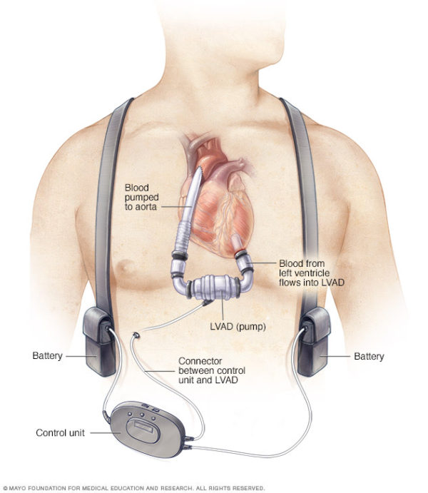 Artificial hearts implanted there must be proportionality between risk for the patient & the benefits.One specific field of use is paediatric heart surgery,