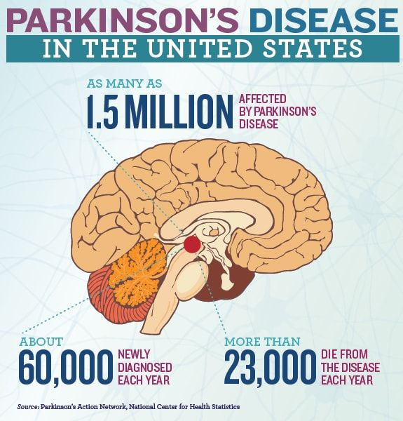 Surgeons from China have planned a new Parkinson treatment with stem cells. The first step to treat this diseases with this technique.