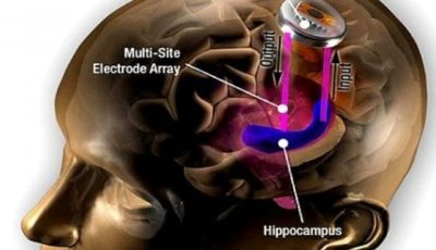 People would be able to enhance their thinking with a chip implanted in the brain. It is called brain enhancement device