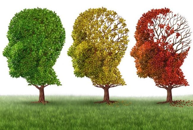 People with early Alzheimer's brain changes can be identified with 94% accuracy, the study found. A new Alzheimer patients positive prospect.