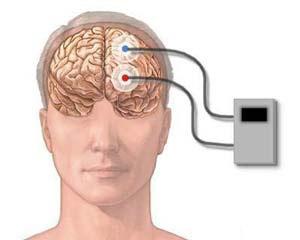 Brain computer devices