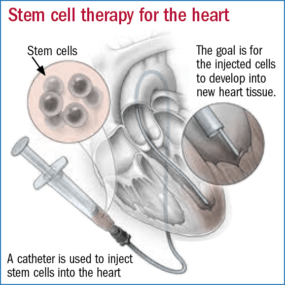 cell therapy advances