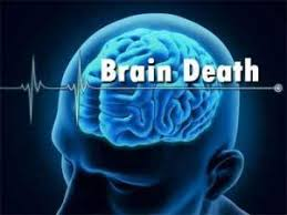 death by neurologic criteria