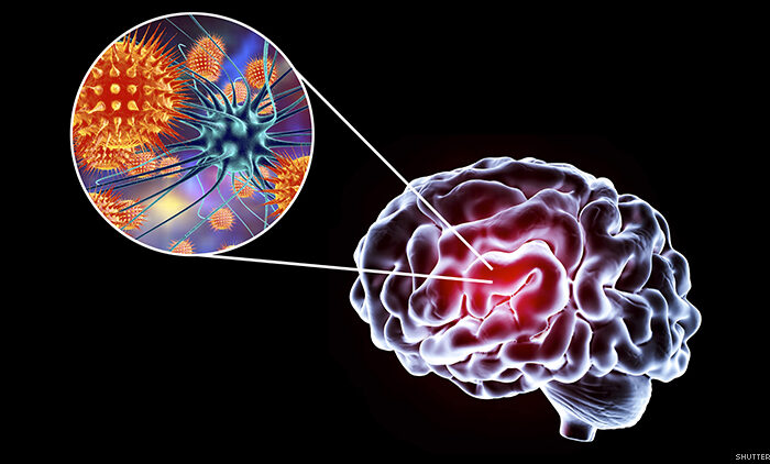 https://bioethicsobservatory.org/2020/06/hiv-reservoirs-after-aHIV older patients study HIV infected people with antiretroviral therapy has high risk of dementia