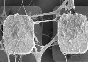 microchips with neuronal circuits