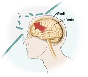 tbi causes stroke